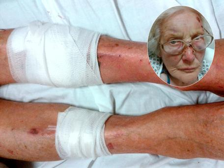 Eva Sutton and her injuries