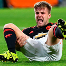 Luke Shaw suffered a broken leg during Manchester United's game against PSV