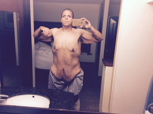 He is fund-raising to have his excess skin removed