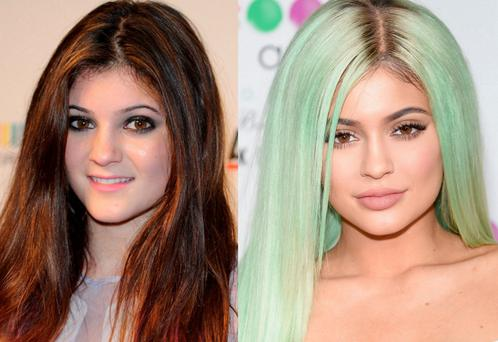 Kylie Jenner in 2011 and in 2015