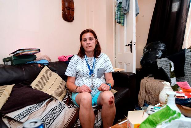 Rachel O'Byrne pictured in her ransacked home, with injuries on knee