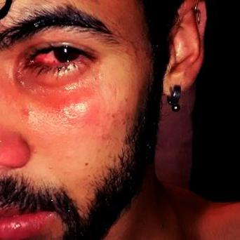 21-year-old student Bruno Omena almost lost the sight in his eye after a gang of ten attacked him Credit: Bruno Omena (UOL)