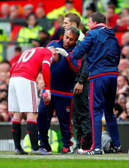 Manchester United's Wayne Rooney receives medical attention Reuters / Eddie Keogh Livepic