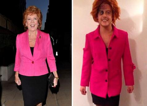 Former X Factor hopeful Ryan Ruckledge dressed up as the late Cilla Black for Halloween with bruised eye and bloodied legs