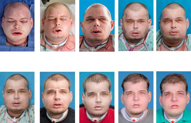 A series of photos showing the progress of Mr Hardison's face transplant surgery Credit: NYU Langone Medical Center (Reuters)