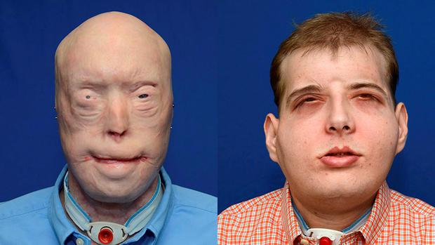 Volunteer firefighter Patrick Hardison (41) shown in this before-and-after photo folliowing his face transplant surgery Credit: NYU Langone Medical Center (Reuters)
