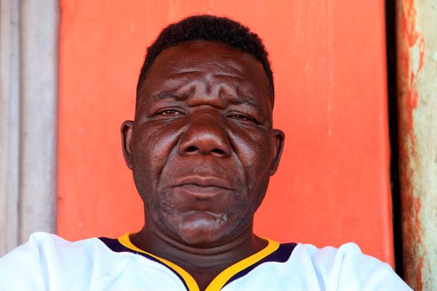 In this Nov. 13, 2015 file photo, Zimbabwe's three-times Mr Ugly winner William Masvinu poses for a photo in Harare. Pageant judges have crowned a new winner of Zimbabwes 4th annual Mister Ugly contest, upsetting supporters of the crowd favorite and prompting rioting at the event. Judges on Saturday, Nov. 21 chose 42-year-old Milton Sere, citing his numerous missing front teeth and a wide range of grotesque facial expressions, over Masvinu, who had held the title since 2012