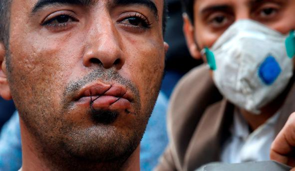 A stranded Iranian migrant has his lips sewn as he sits on rail tracks at the border between Greece and Macedonia near the Greek village of Idomeni November 23, 2015. REUTERS/Yannis Behrakis