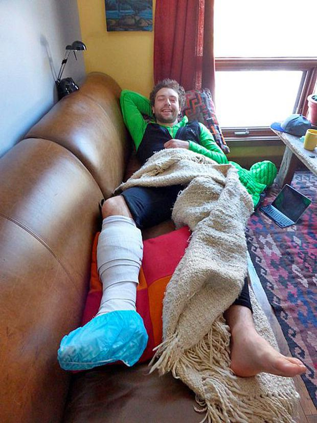 Greg Boswell recovering after being attacked by a grizzly bear on Mount Wilson in the Canadian Rockies Photo: Nick Bullock