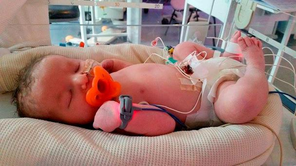Abigail Goodall died at four days old after doctors made a mistake reading an X-ray and left a catheter in the wrong place, an inquest has heard Credit: Slater and Gordon /PA Wire