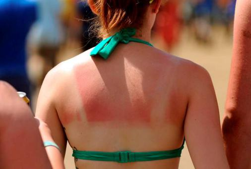 A rather sunburned back. Photo: Anthony Devlin/PA Wire