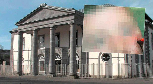 Limerick courthouse, inset, the horrific stab injuries inflicted by Craig McMahon