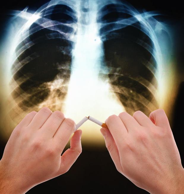 Lung cancer is now the fourth most common disease in Ireland.