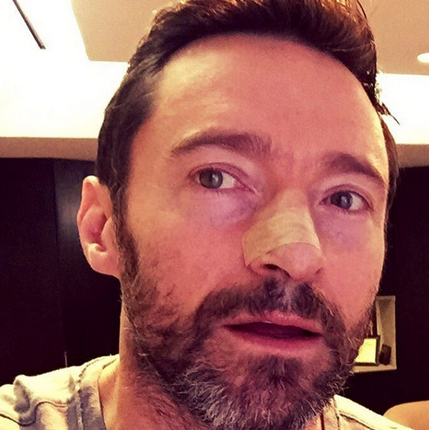Photo: Instagram/ @Hugh Jackman