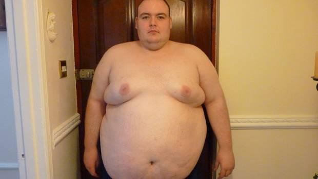 Patrick before his 22 stone weight loss