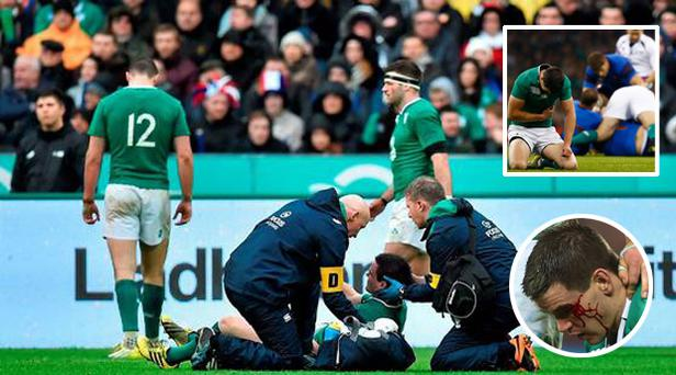 Johnny Sexton battered and bruised against France