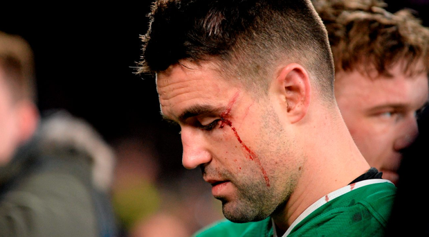 Conor Murray shows the scars of battle after being on the receiving end of Mike Brown's boot. Photo: Brendan Moran/Sportsfile