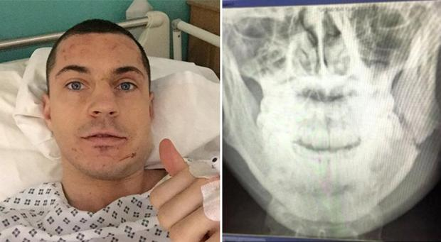 Scott Quigg fought for eight rounds with a broken jaw