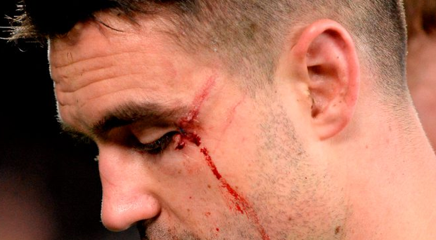 Conor Murray received eight stitches but suffered no permanent damage following an injury to his eye Photo: Brendan Moran / SPORTSFILE