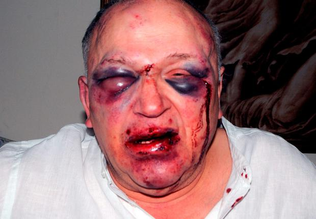 Alfiero Cetamore, after he was viciously attacked in his own home and robbed of his jewellery Credit: Greater Manchester Police/PA Wire