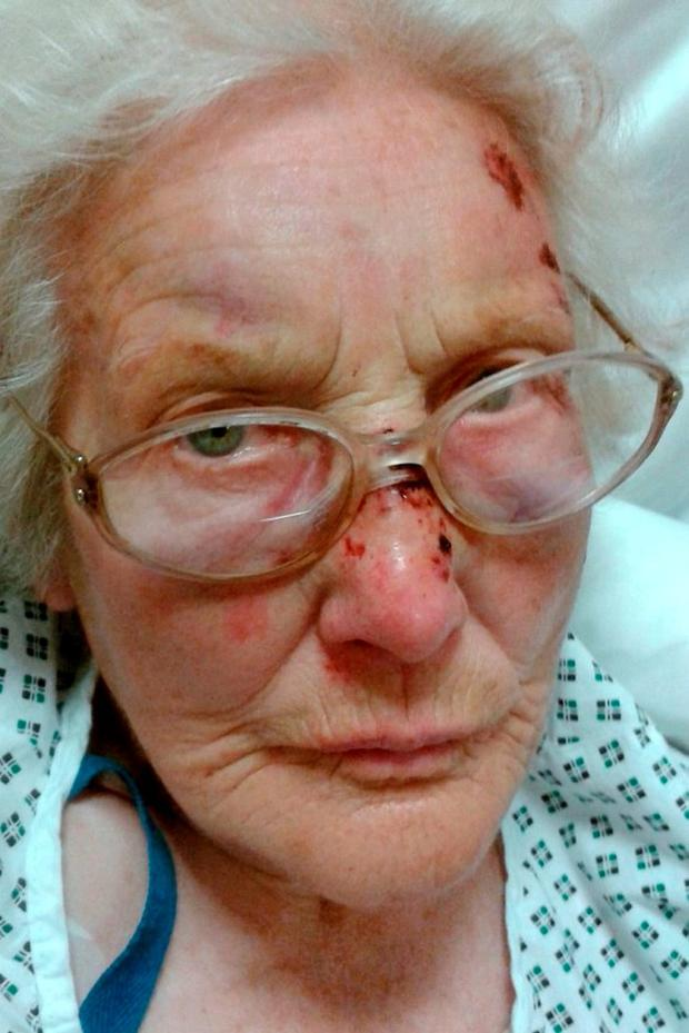 Eva Sutton (89) was savagely beaten in her home by burglars
