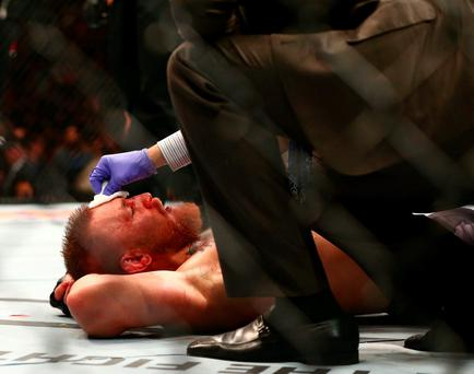 Conor McGregor is looked at by the ring doctor following his loss against Nate Diaz at the MGM Grand Garden Arena, Las Vegas. Photo: USA Today Sports