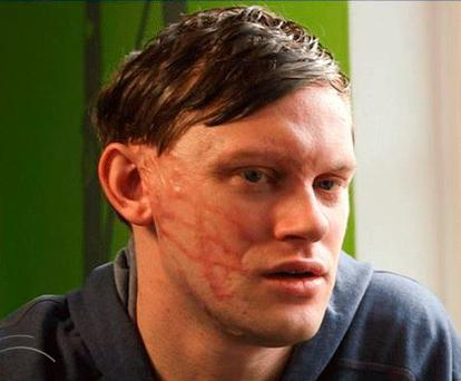 Darren Pidgeon after the attack. Picture Crimewatch UK
