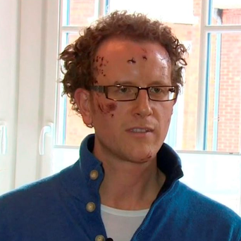 Video grab taken from BBC News of Mark Beamish, who survived the terrorist attack at Maelbeek Metro Station in Brussels. Photo: BBC News/PA Wire