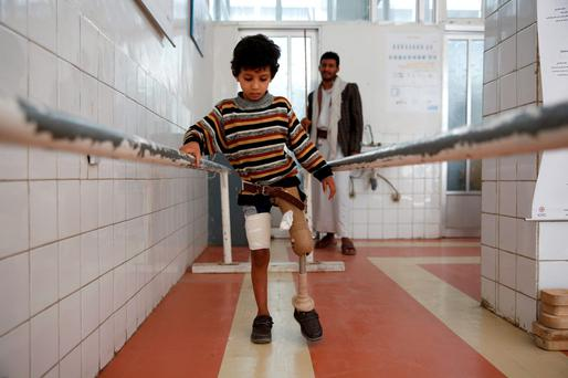 A young boy who lost his leg in the Yemen war uses a prosthetic limb at a government-run rehabilitation center in Sanaa, Yemen. (AP Photo/Hani Mohammed, File)
