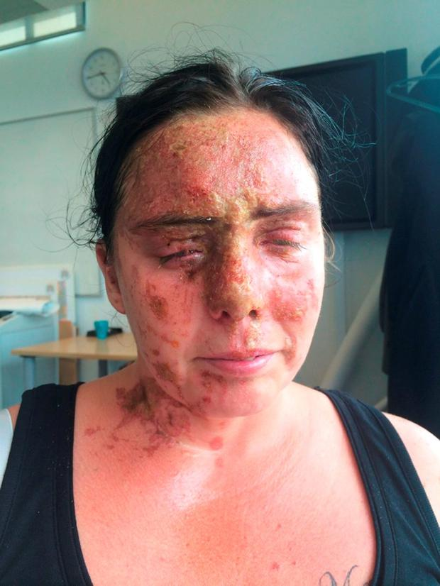 Carla Whitlock, the mother of six who was blinded in one eye Credit: Hampshire Police/PA Wire
