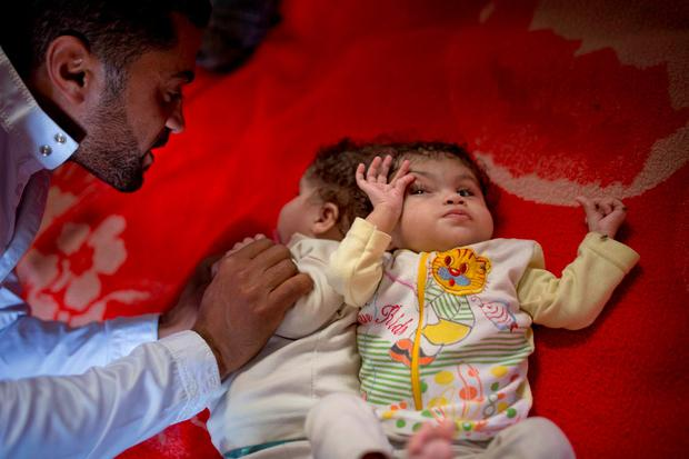 Egyptian father Islam Hassan watches his conjoined, 10 month old, twin daughters who are attached by the head, Mai and Menna, at their home in Sadat city, about 94 km (58 miles) north-west of Cairo. (AP Photo/Amr Nabil)