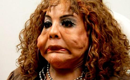 Raji had illegal cement injections in her face.