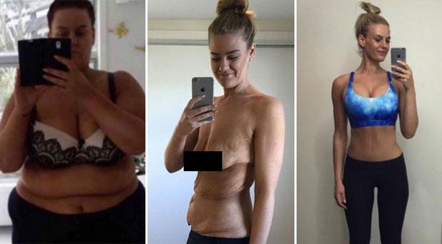 Simone pictured before her weight loss, after her weight loss and following skin removal surgery. Photo Credits @Simone_Anderson