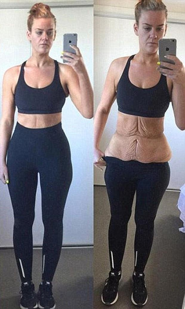Woman Who Shed 14 Stone In 11 Months Shows Off Incredible