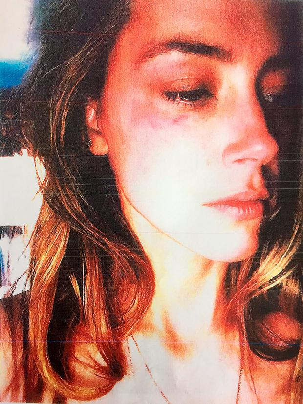 Amber Heard showing her bruised face