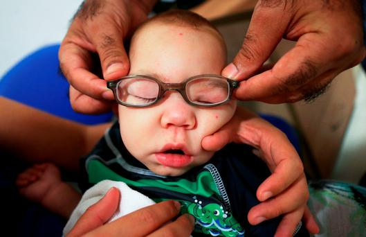 Nine-month-old David Henrique Ferreira, who has microcephaly, tries on new glasses in Brazil (Photo by Mario Tama/Getty Images)