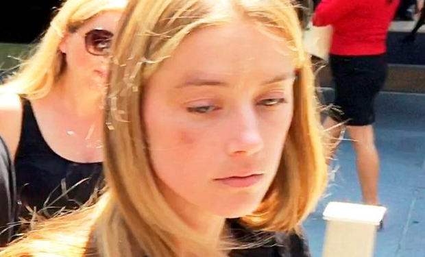 Amber Heard appeared last week with a bruised cheek (Reuters)