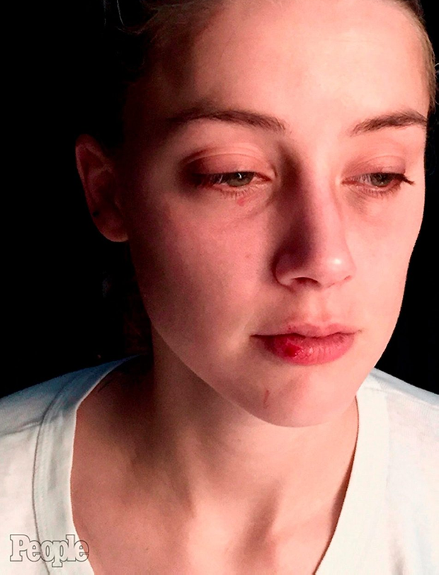 Undated handout photo issued by People Magazine of the Amber Heard appearing to have a bruised eye and cut lip which she claims were the result of Johnny Depp's abuse. People/PA Wire