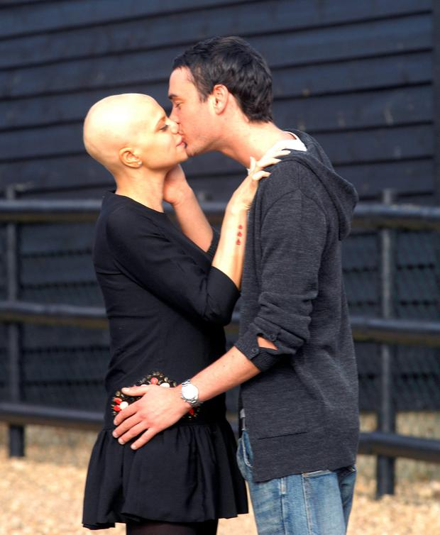 Jade Goody and Jack Tweed make an appearance for the press outside her home in Waltham Abbey on February 21, 2009 in Waltham Abbey, Essex, England. (Photo by Stuart Wilson/Getty Images)