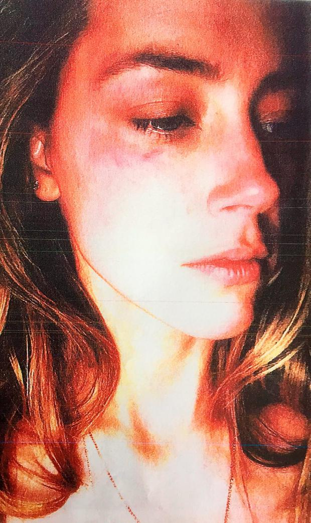 A photo submitted to Los Angeles Superior County Court by Amber Heard showing her bruised face. Photo: PA