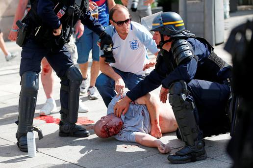 An man injured in clashes is assisted by police officers in downtown Marseille