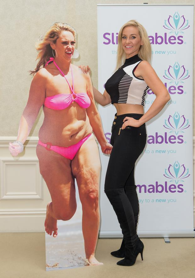 Josie Gibson attends a photocall to launch her new diet website 'Slimmables' at The Landmark Hotel on February 3, 2015 in London, England.