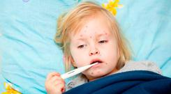 The main symptoms of measles are fever, rash, cough, runny nose and inflammation of the eye. Picture posed. Stock Image