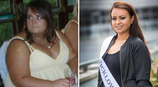 Wicklow Rose Jane Harrison lost 13 stone after gastric band surgery