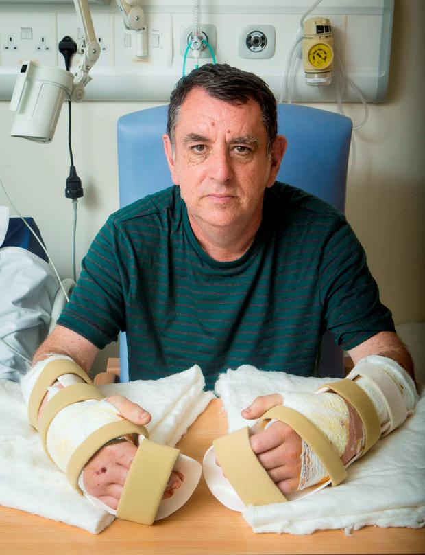 The UK's first double hand transplant patient Chris King, from Doncaster, with his new hands at Leeds General Infirmary. Photo: Danny Lawson/PA Wire