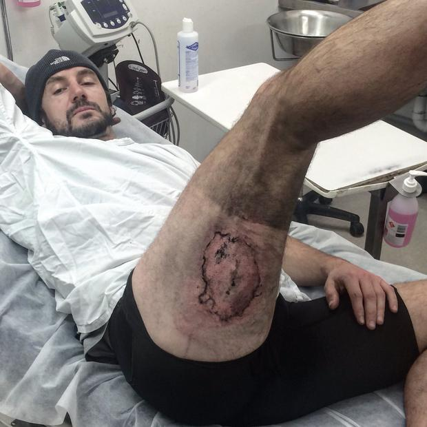 Gareth Clear needed a skin graft after his iPhone exploded. Photo: Twitter/Gareth Clear