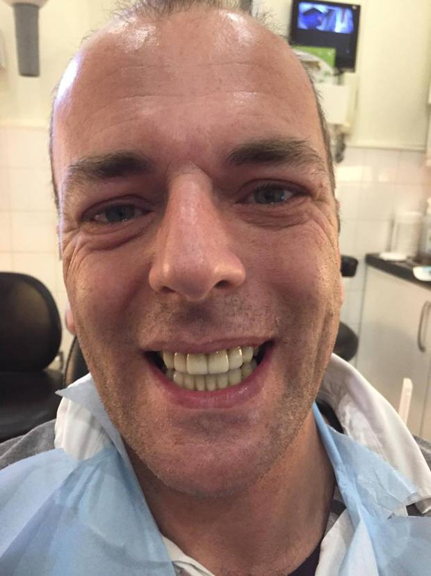 Anthony Corbett (45) after his smile was transformed in 3Dental in Dublin