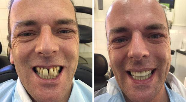 Anthony Corbett (45) before and after his smile was transformed in 3Dental in Dublin