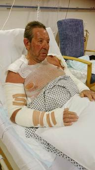 Gordon Henderson in hospital with burns to 30% of his body after his bonfire exploded as he poured petrol on it to get it started. PA