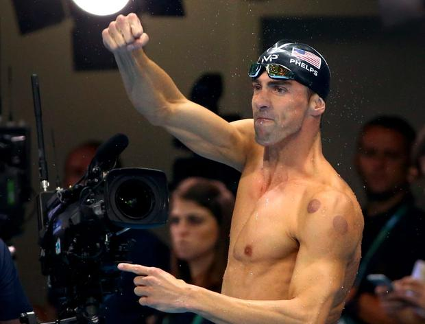 Cup marks the spot: USA Olympian Michael Phelps was pictured with cupping marks after swimming to gold in Rio this week. Photo: REUTERS/David Gray